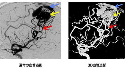 脳動静脈奇形の血管造影